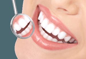 Dental Seal lekaren, Heureka