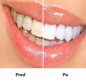 Dental Seal recenzie, forum