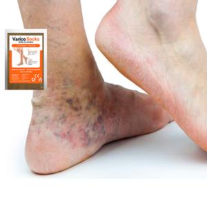 VaricoSocks компресионни чорапи, как да го използвате