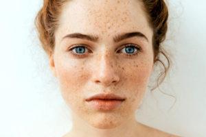 Bright Skin становища, форум, коментари