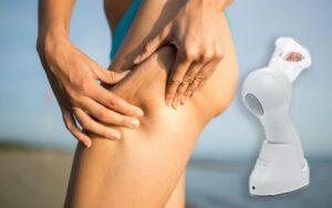 Cellulite Massage vákuummasszírozó, hogyan kell használni, hogyan működik , mellékhatások